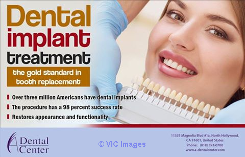 Dental implants North Hollywood Los Angeles, CA, US Classifieds