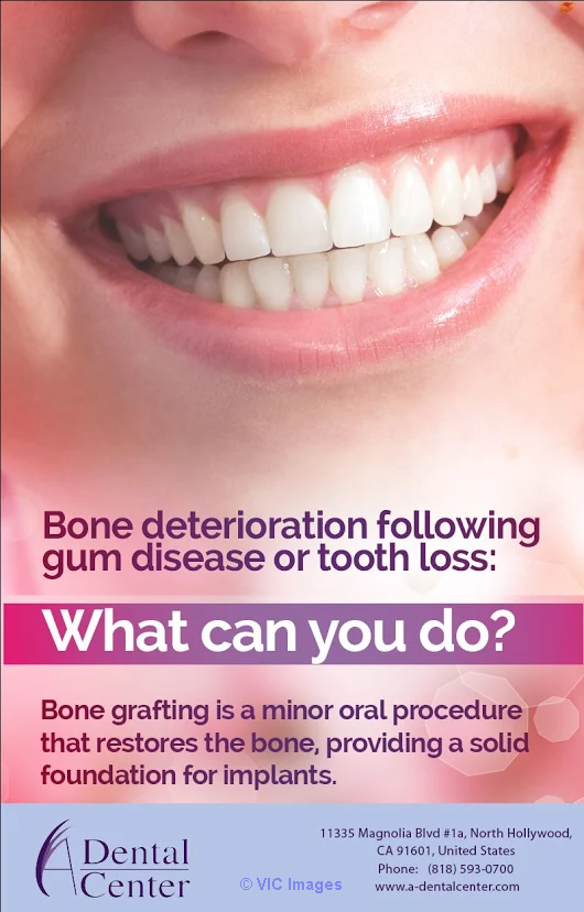 Local Bone Grafting North Hollywood  Los Angeles, CA, US Classifieds