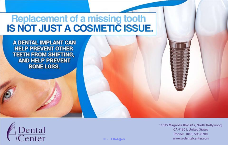 Cosmetic Dentistry in North Hollywood   Los Angeles, CA, US Classifieds