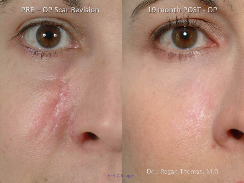 Most Popular Scar Revision Advanced Treatments By Dr. Patrick Obasi  Los Angeles, CA, US Classifieds