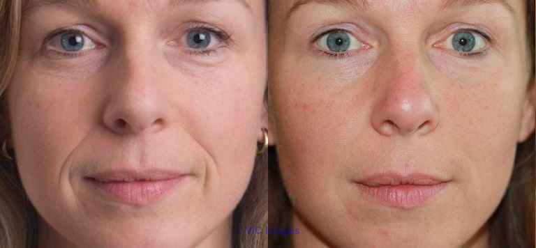 Recommended Dermal Fillers Plano TX - 75023- Dr. Patrick Obasi  Los Angeles, CA, US Classifieds