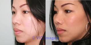 Top Rated Rhinoplasty Plano TX - Dr. Patrick Obasi  Los Angeles, CA, US Classifieds